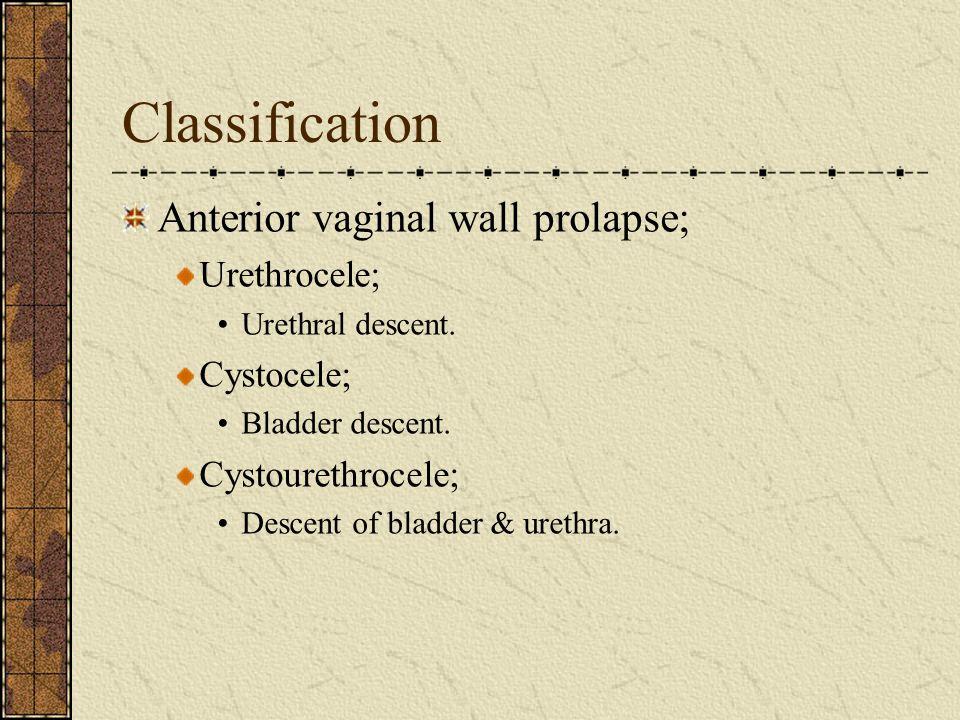 Classification Anterior vaginal wall prolapse; Urethrocele; Cystocele;