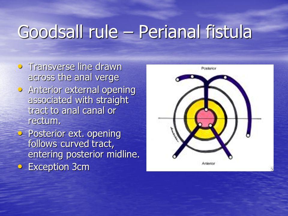 Goodsall rule – Perianal fistula