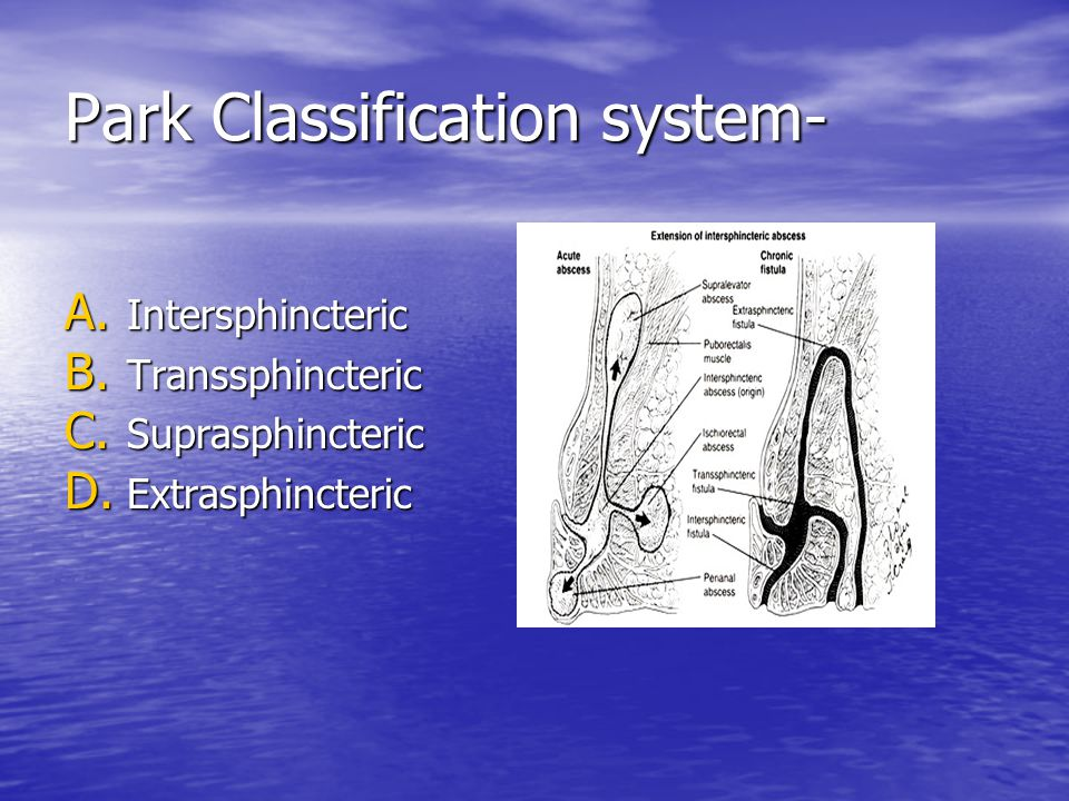 Park Classification system-