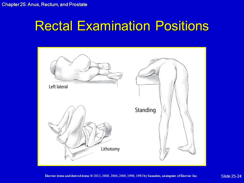Rectal Examination Positions