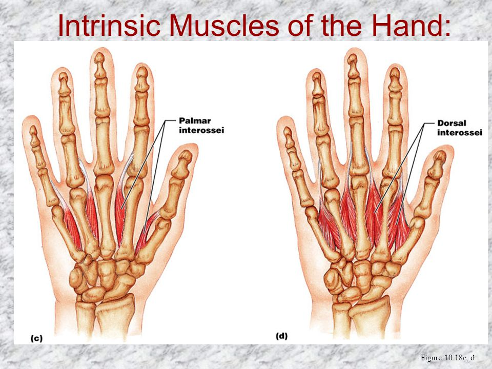 Intrinsic Muscles of the Hand: Groups