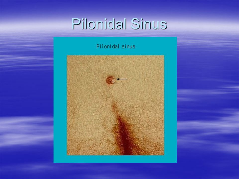 Pilonidal Sinus Commonly in natal cleft, but can occur at other sites.