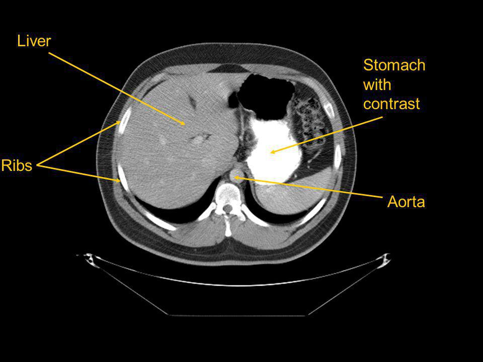 Liver Stomach with contrast Ribs Aorta