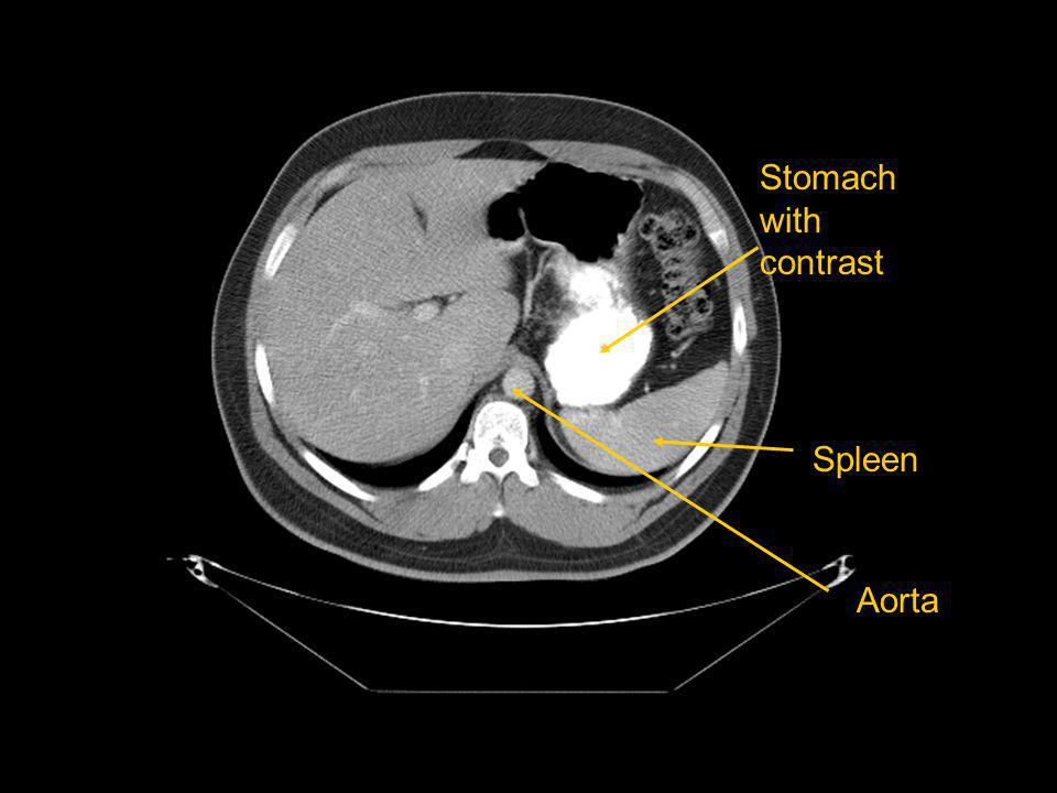Stomach with contrast Spleen Aorta