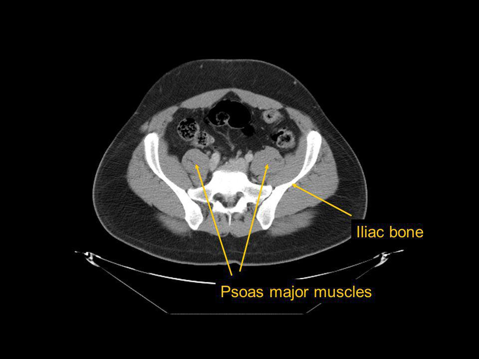 Iliac bone Psoas major muscles