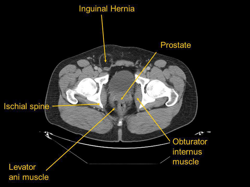 Inguinal Hernia Prostate Ischial spine Obturator internus muscle Levator ani muscle