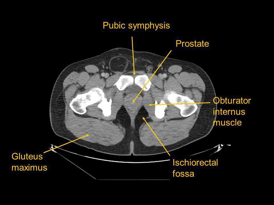 Pubic symphysis Prostate Obturator internus muscle Gluteus maximus Ischiorectal fossa