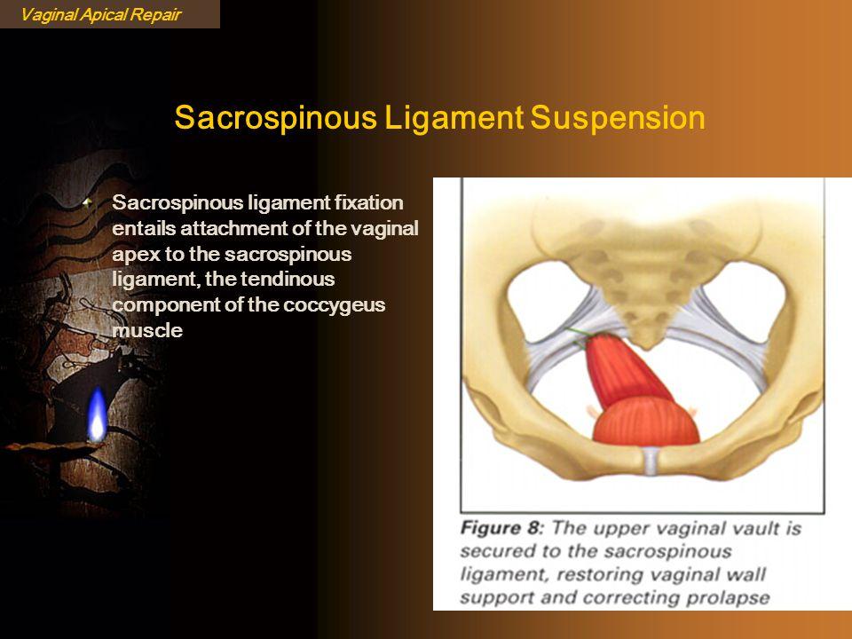 Sacrospinous Ligament Suspension