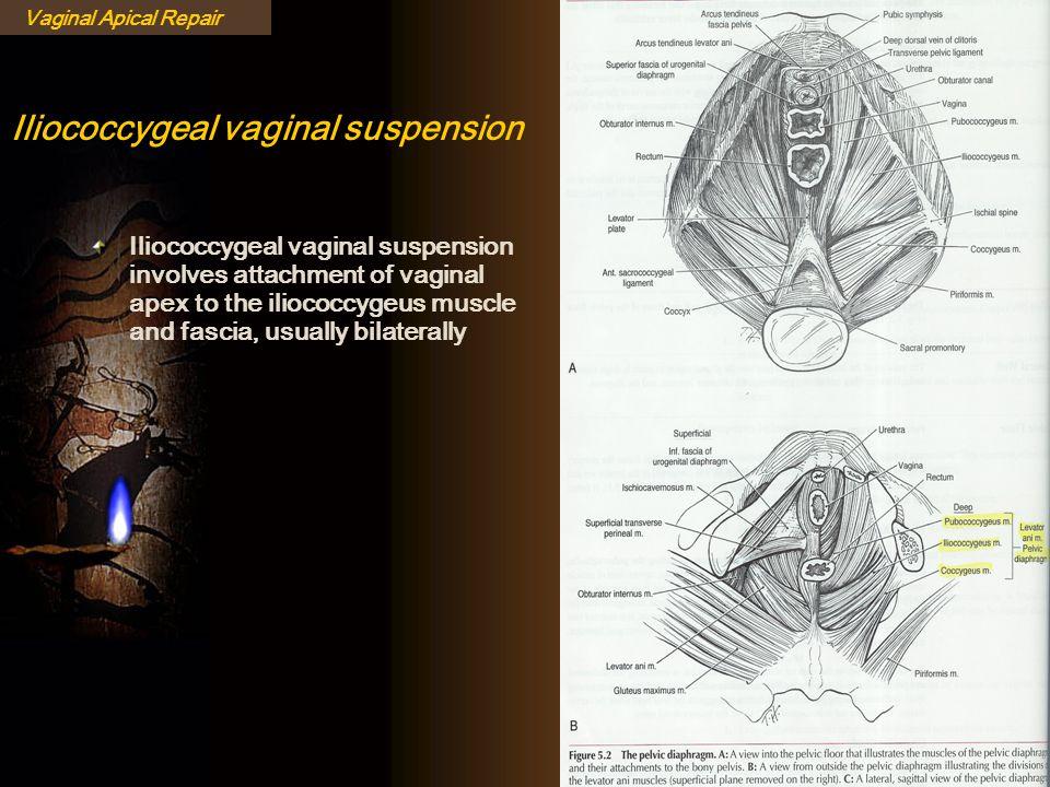 Iliococcygeal vaginal suspension