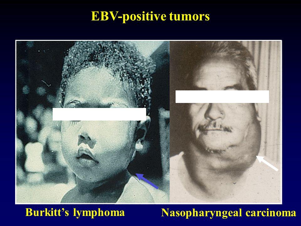 EBV-positive tumors Burkitt's lymphoma Nasopharyngeal carcinoma 19