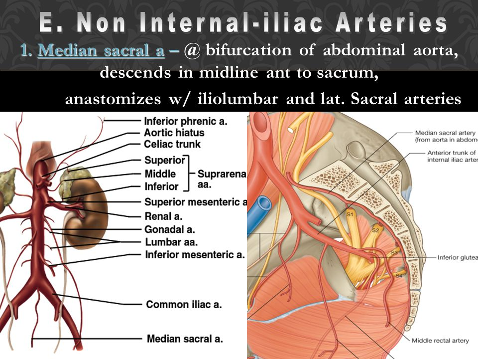 E. Non Internal-iliac Arteries