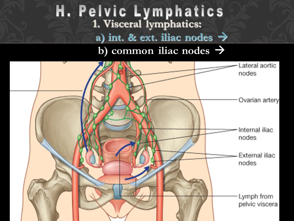 H. Pelvic Lymphatics 1. Visceral lymphatics: a) int. & ext. iliac nodes  b) common iliac nodes 