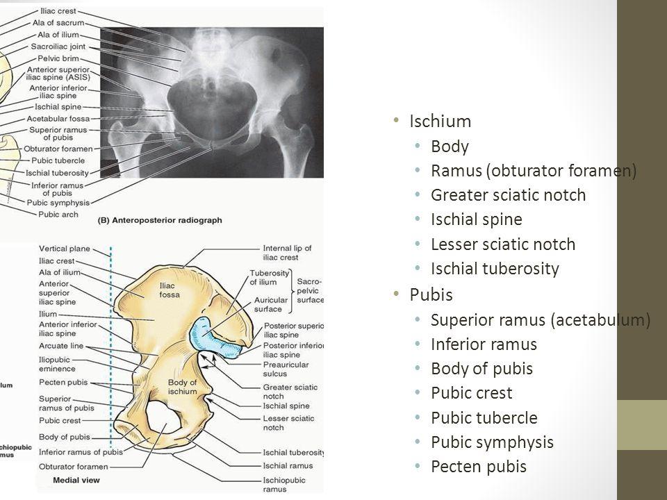 Ischium Pubis Body Ramus (obturator foramen) Greater sciatic notch