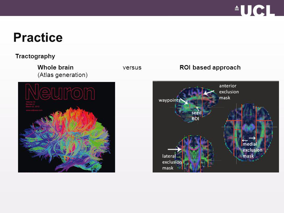 Practice Tractography Whole brain versus ROI based approach