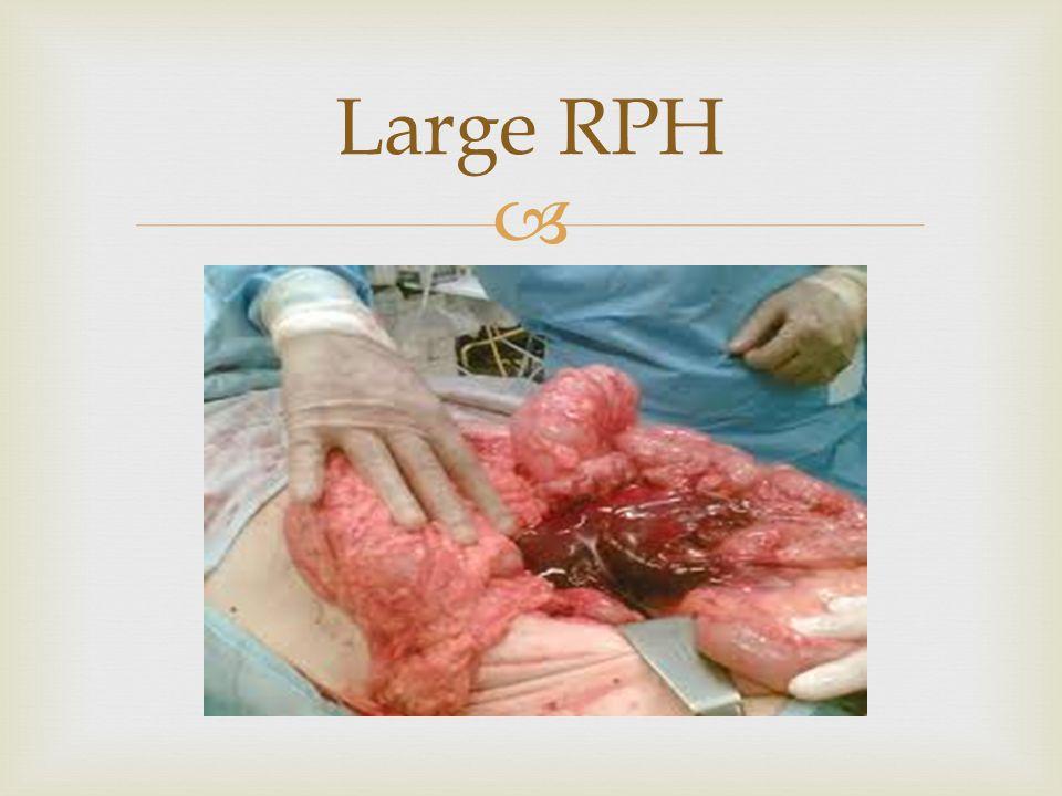 Large RPH