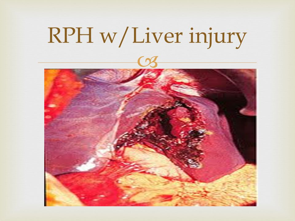 RPH w/Liver injury