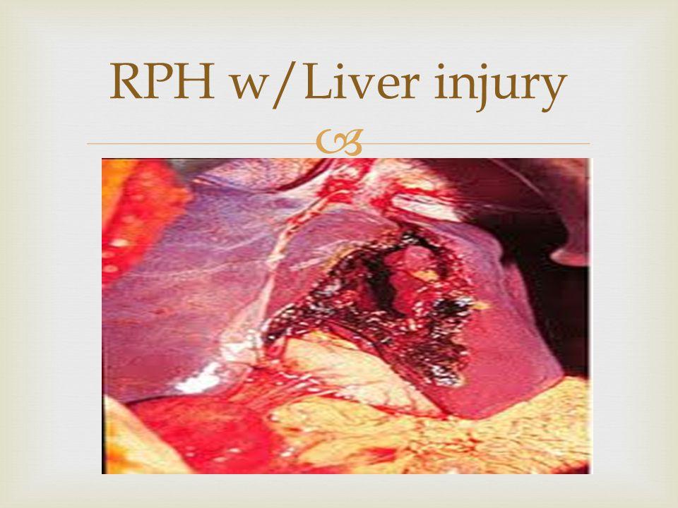RPH w/Liver injury