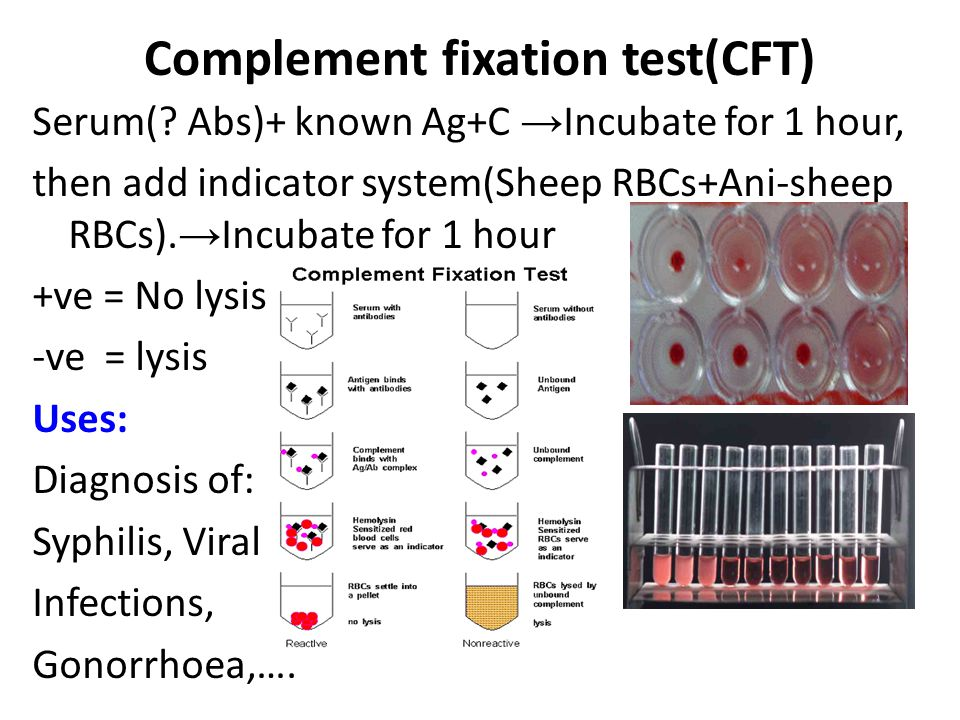 Complement fixation test(CFT)