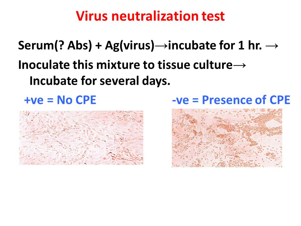 Virus neutralization test