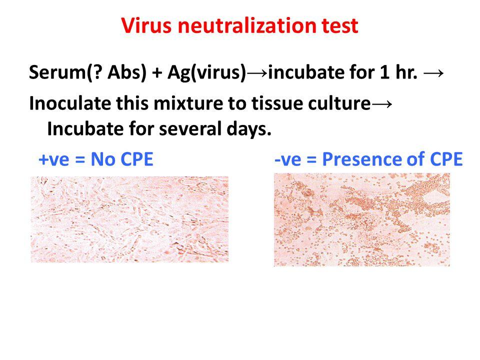 Virus neutralization test