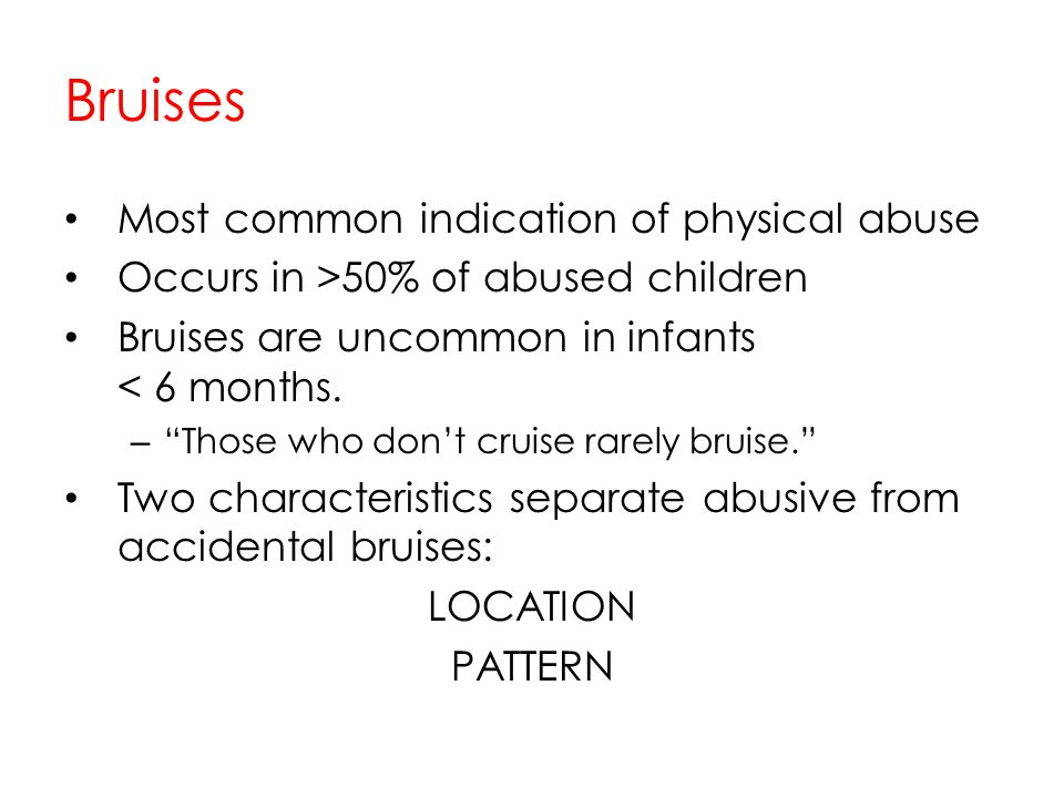 Bruises Most common indication of physical abuse
