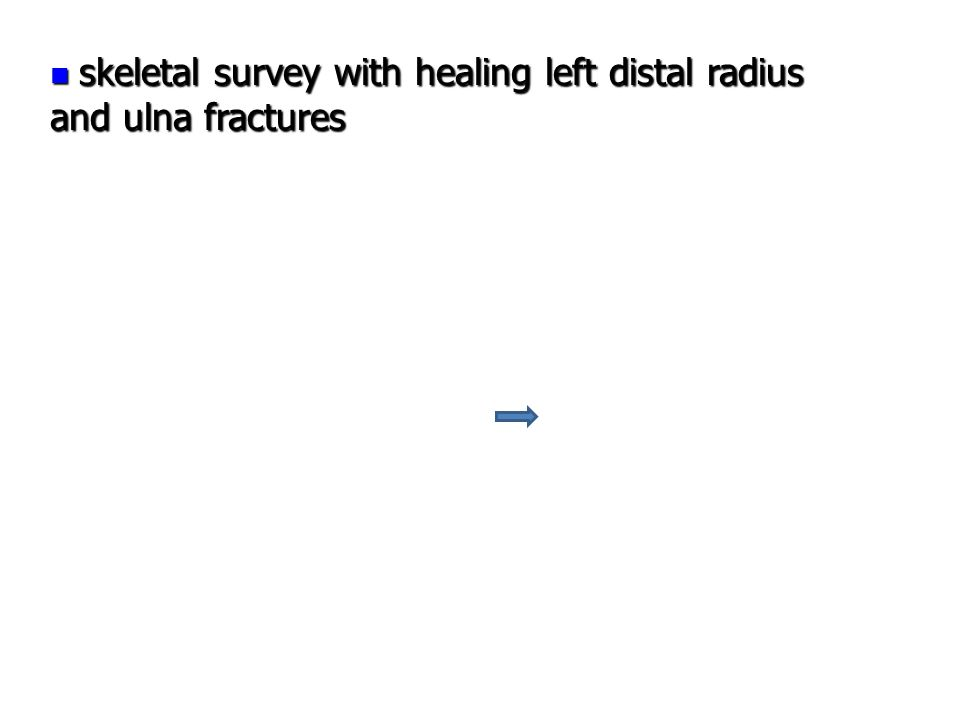 skeletal survey with healing left distal radius and ulna fractures