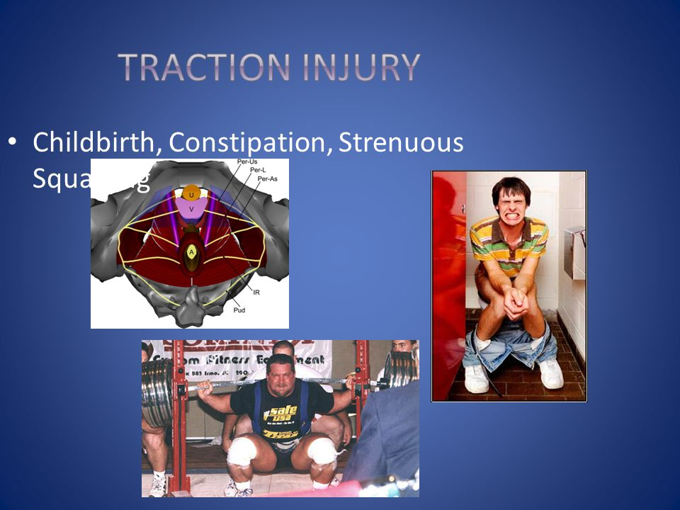 Traction Injury Childbirth, Constipation, Strenuous Squatting 49