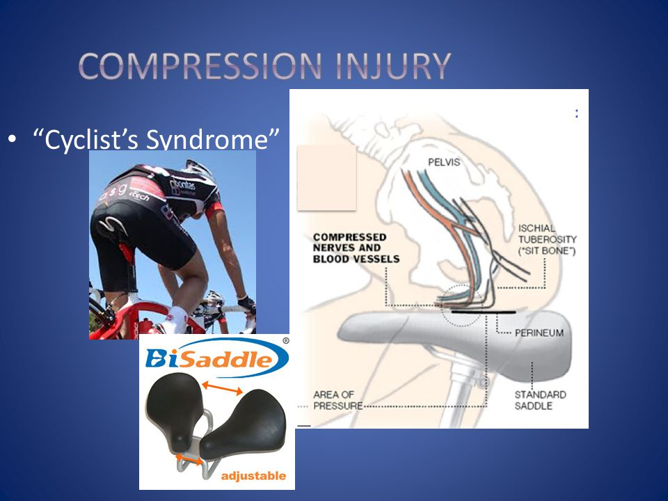 Compression injury Cyclist's Syndrome 50