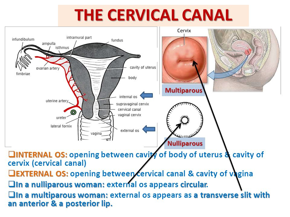THE CERVICAL CANAL Multiparous. Nulliparous. INTERNAL OS: opening between cavity of body of uterus & cavity of cervix (cervical canal)