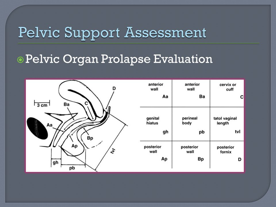 Pelvic Support Assessment