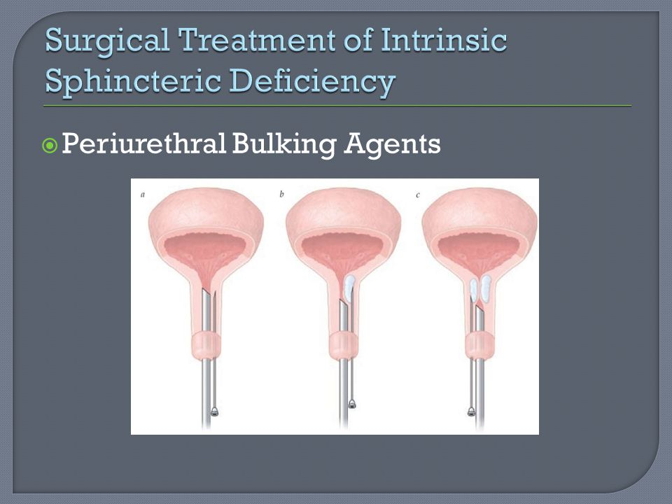 Surgical Treatment of Intrinsic Sphincteric Deficiency
