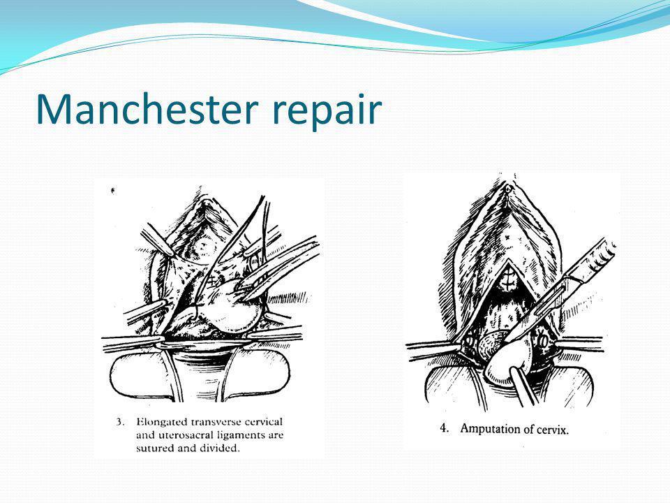 Manchester repair