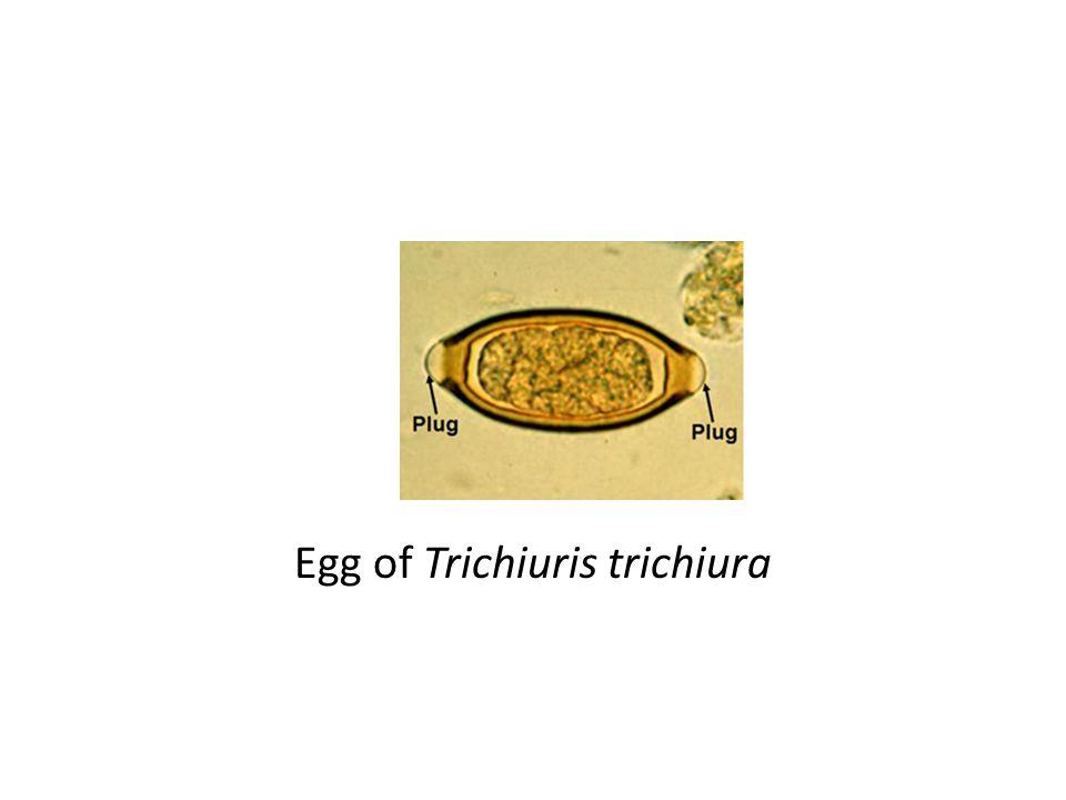 Egg of Trichiuris trichiura