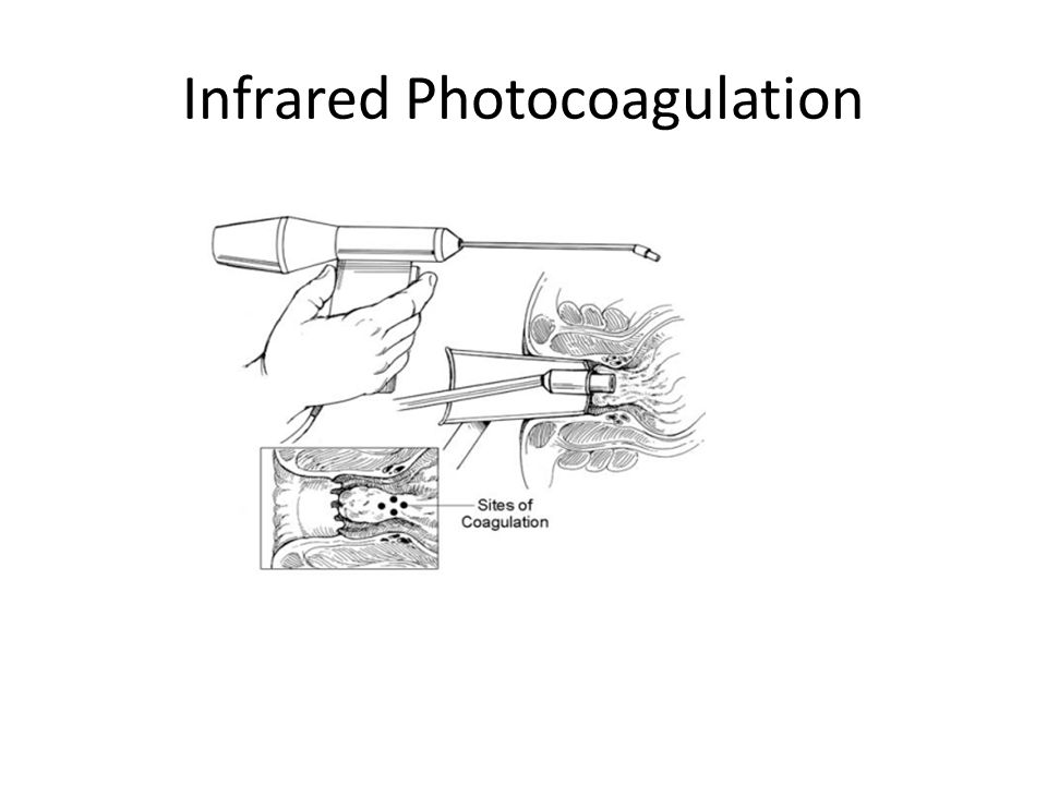Infrared Photocoagulation