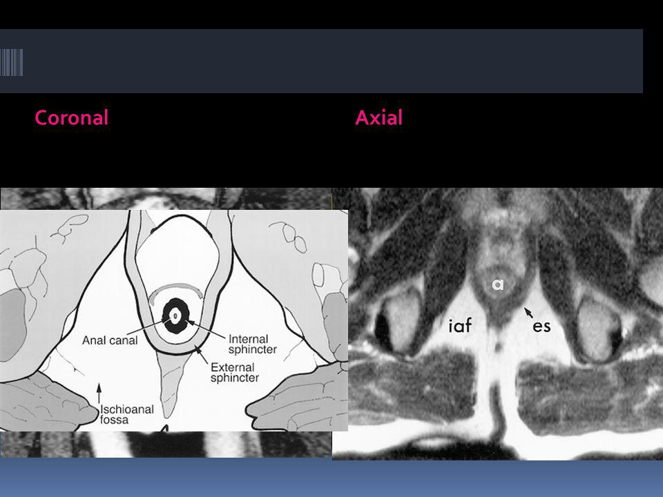 Coronal Axial
