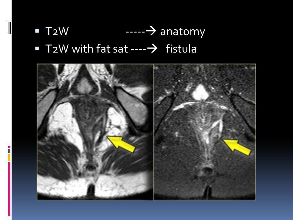 T2W ----- anatomy T2W with fat sat ---- fistula