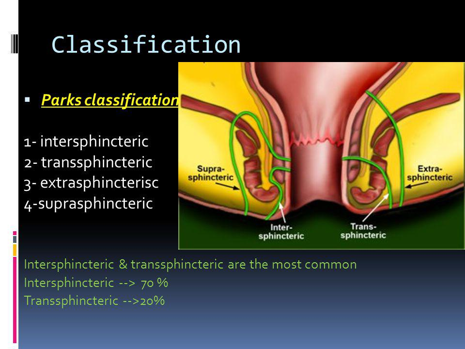 Classification Parks classification 1- intersphincteric