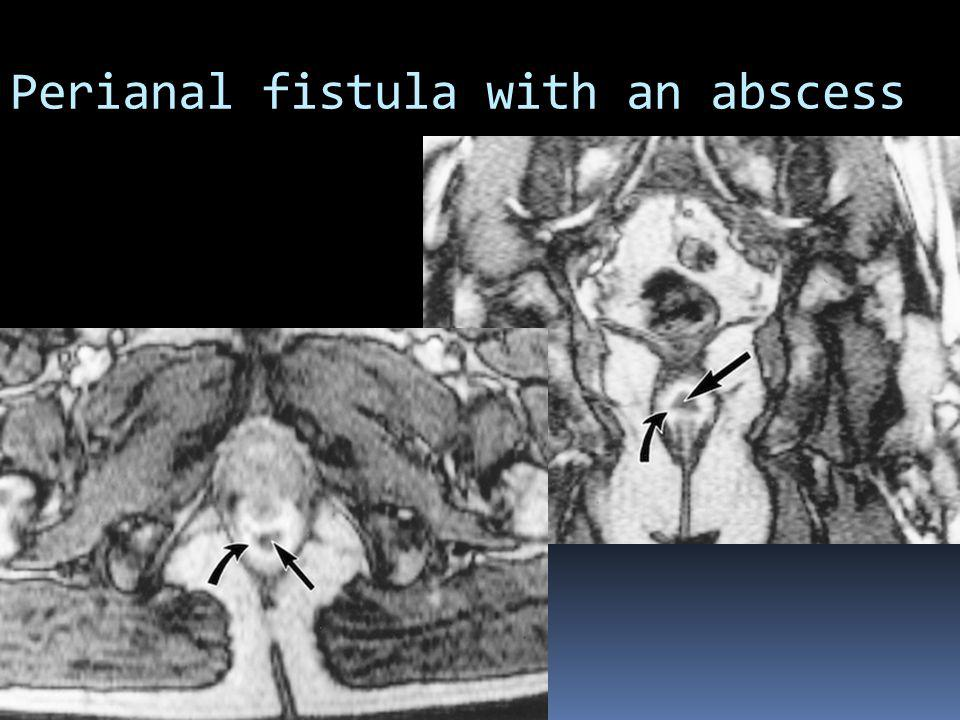 Perianal fistula with an abscess