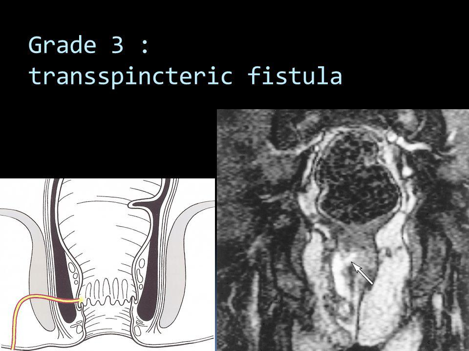 Grade 3 : transspincteric fistula