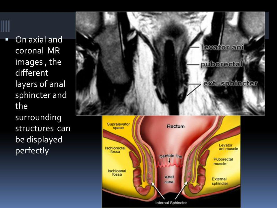 On axial and coronal MR images , the different layers of anal sphincter and the surrounding structures can be displayed perfectly