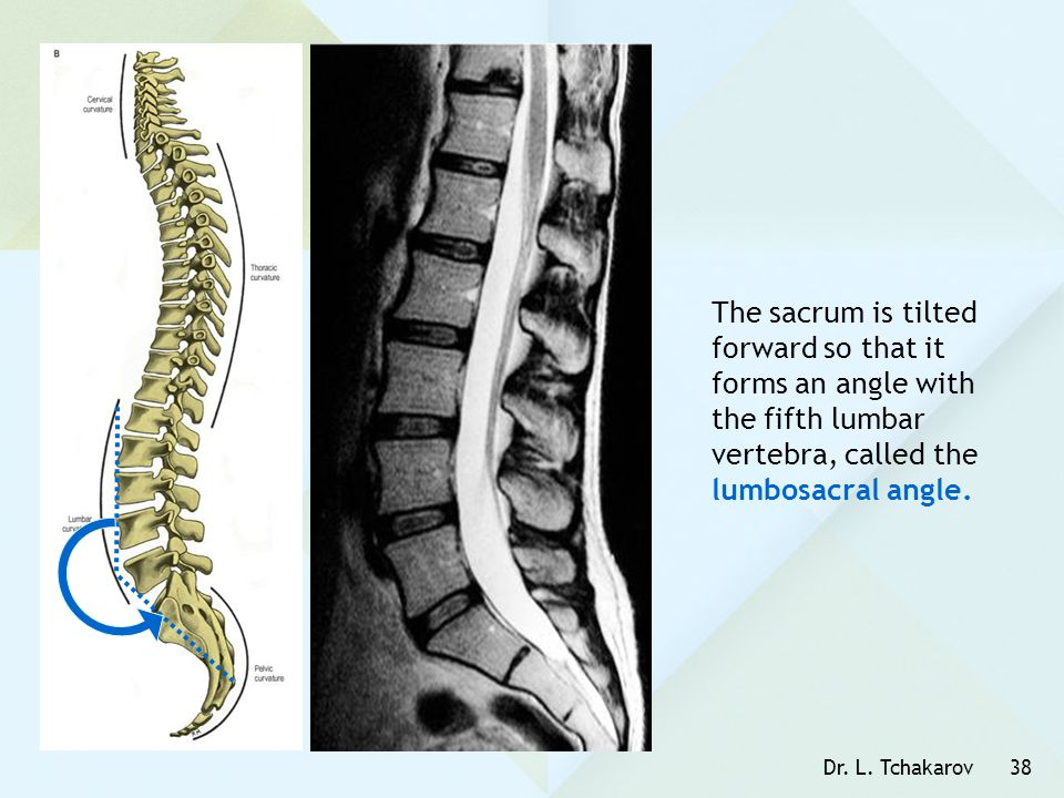 The sacrum is tilted forward so that it forms an angle with the fifth lumbar vertebra, called the lumbosacral angle.