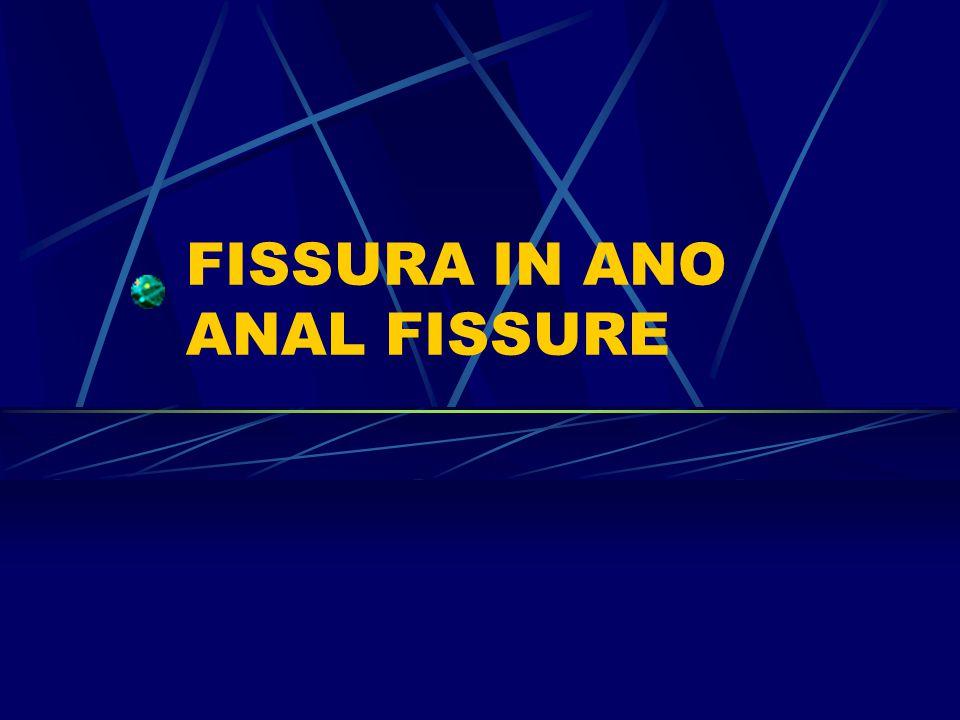 FISSURA IN ANO ANAL FISSURE