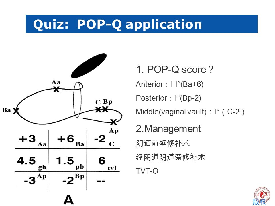 Quiz: POP-Q application