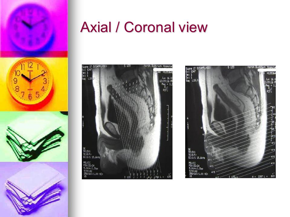 Axial / Coronal view