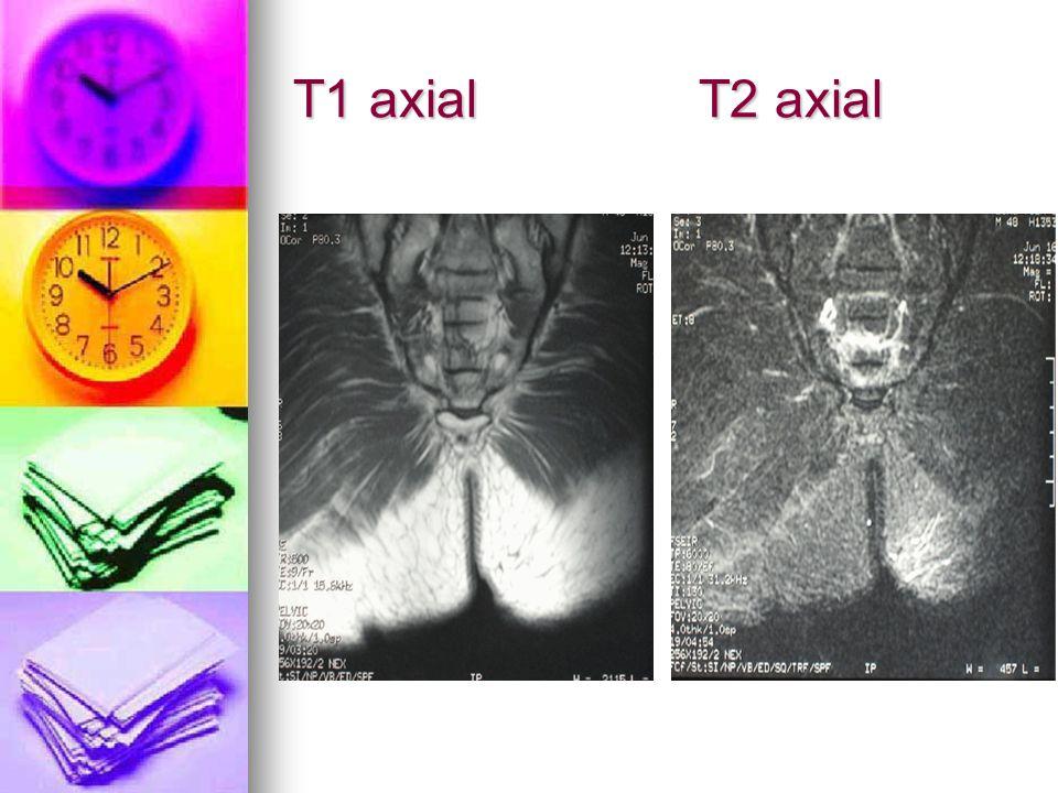 T1 axial T2 axial