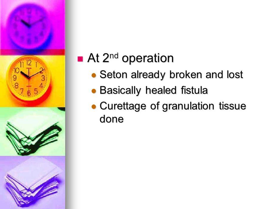 At 2nd operation Seton already broken and lost