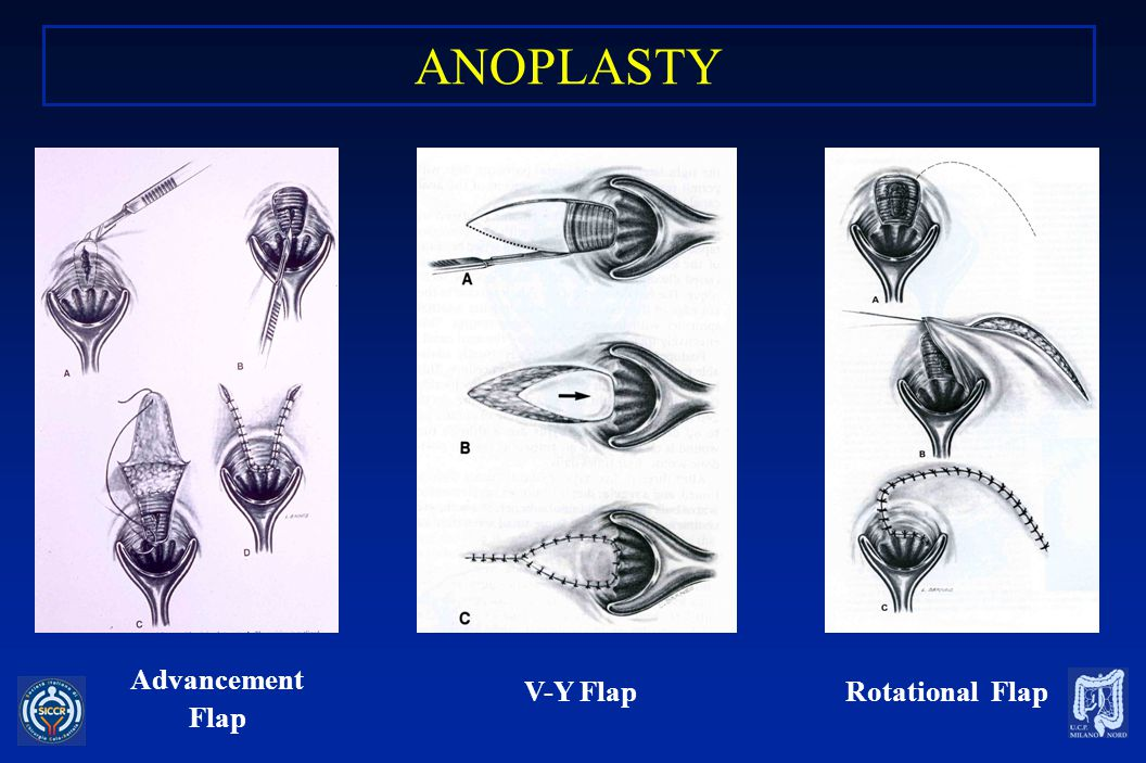 ANOPLASTY Advancement Flap V-Y Flap Rotational Flap