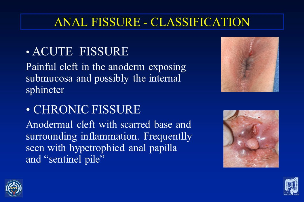 ANAL FISSURE - CLASSIFICATION