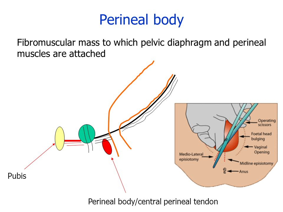 Perineal body Fibromuscular mass to which pelvic diaphragm and perineal muscles are attached. Perineal body/central perineal tendon.