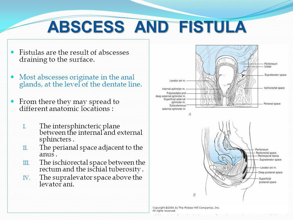 ABSCESS AND FISTULA Fistulas are the result of abscesses draining to the surface.